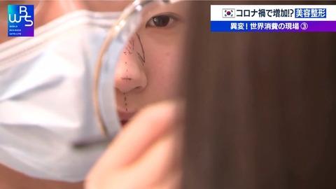 コロナ禍なのになぜ増加? 韓国で拡大する美容整形