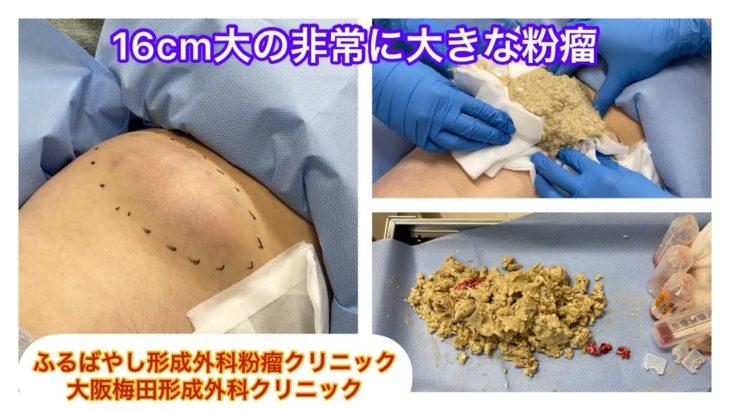 【GIF】粉瘤(ふんりゅう)絞るで!!!!!!!大量注意wwwwwwww