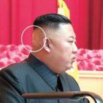 【北朝鮮】後頭部に「バンド」を貼った金正恩委員長